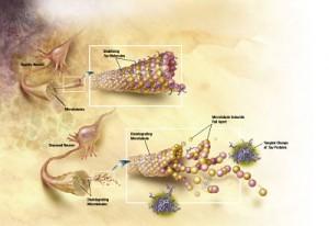 En la enfermedad de Alzheimer, los cambios en la proteína tau conducen a la desintegración de la estructura de las células cerebrales.