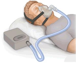 Representación de un paciente usando CPAP. Fuente: Wikipedia