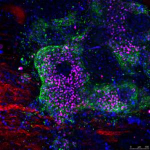 Diferenciación cardíaca de células madre pluripotentes humanas derivadas a cardiomiocitos en la matriz extracelular de un ventrículo descelurarizado. Autor: IBEC