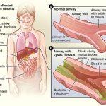 Cysticfibrosis01