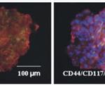 Intestinal_organoid_COLON2